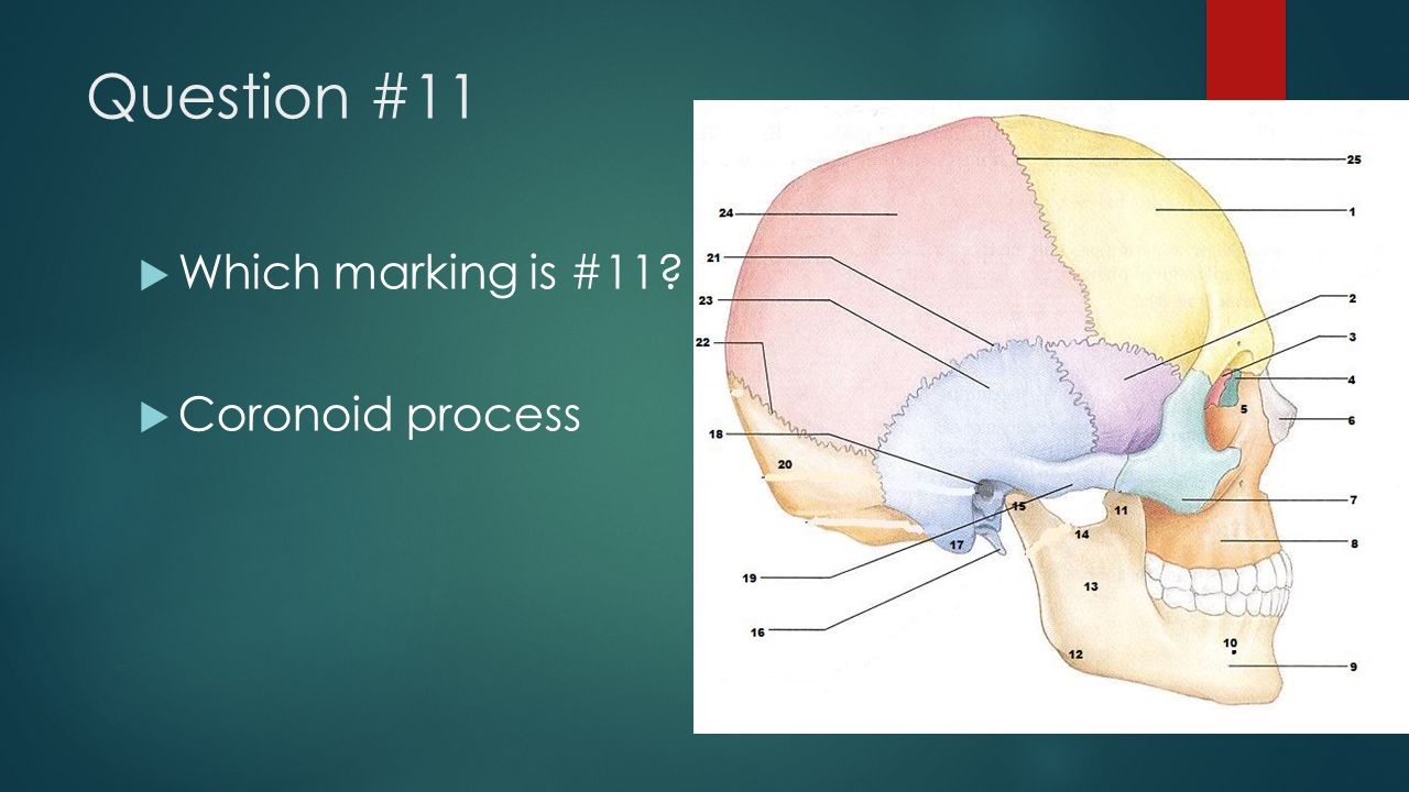 Question #11 Which marking is #11 Coronoid process