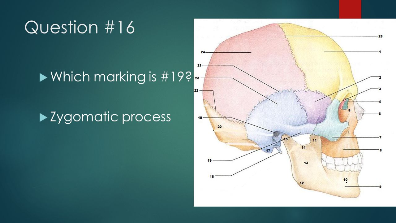 Question #16 Which marking is #19 Zygomatic process