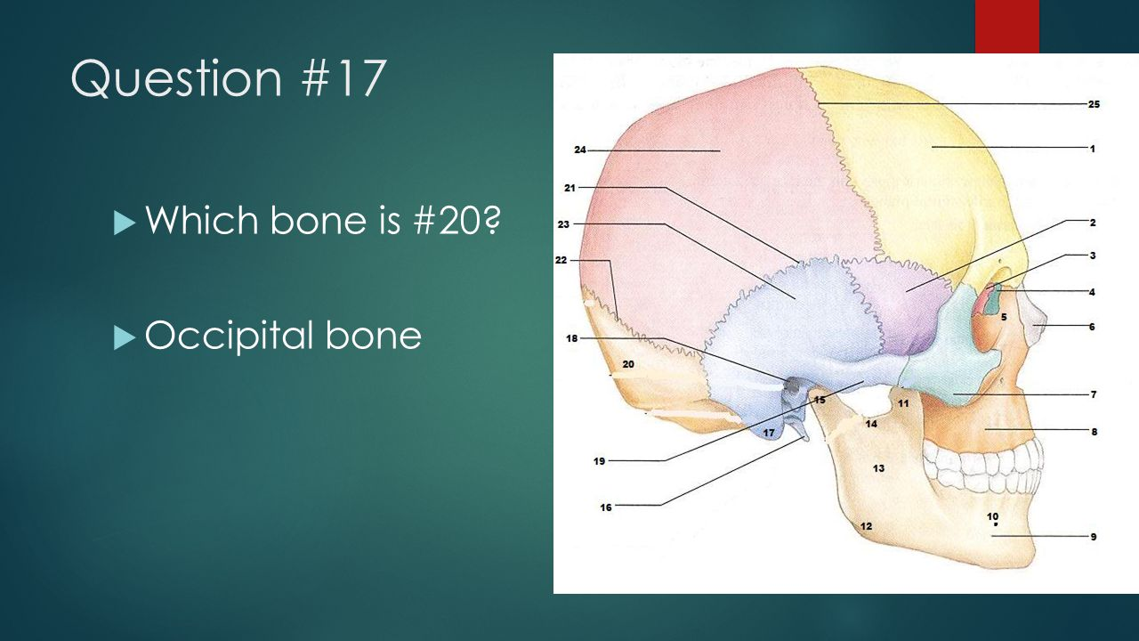 Question #17 Which bone is #20 Occipital bone