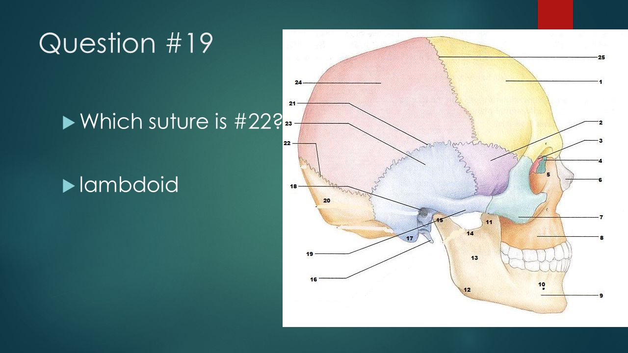 Question #19 Which suture is #22 lambdoid