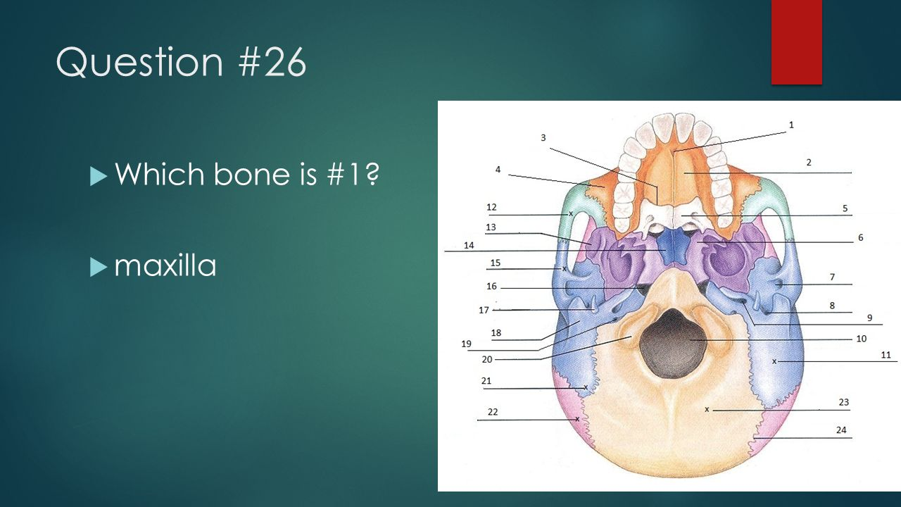 Question #26 Which bone is #1 maxilla