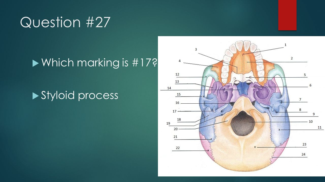 Question #27 Which marking is #17 Styloid process