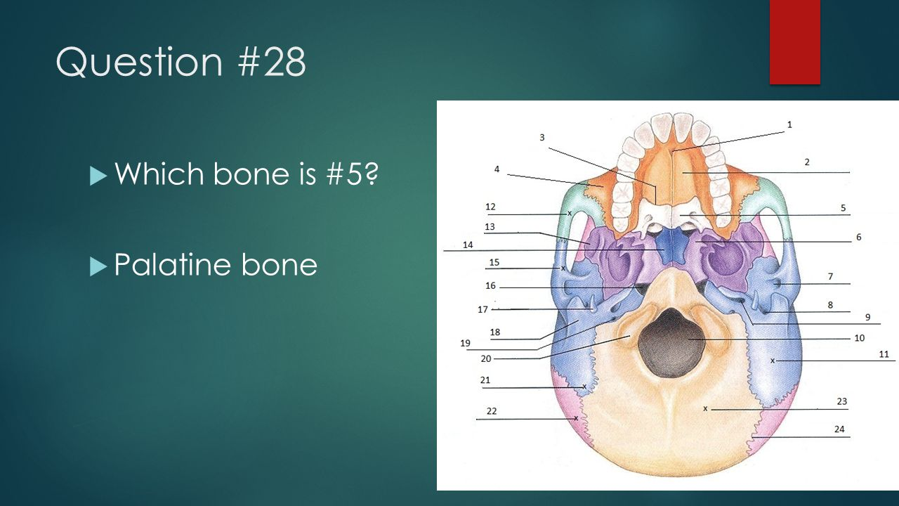 Question #28 Which bone is #5 Palatine bone
