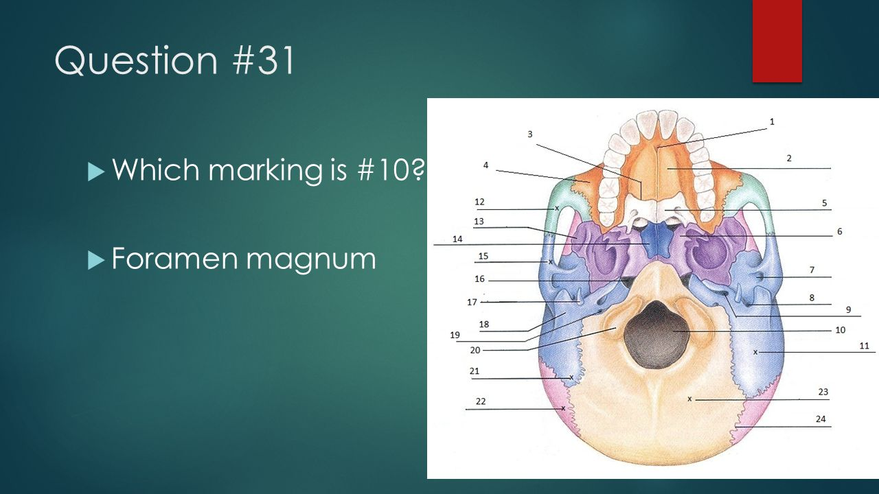 Question #31 Which marking is #10 Foramen magnum
