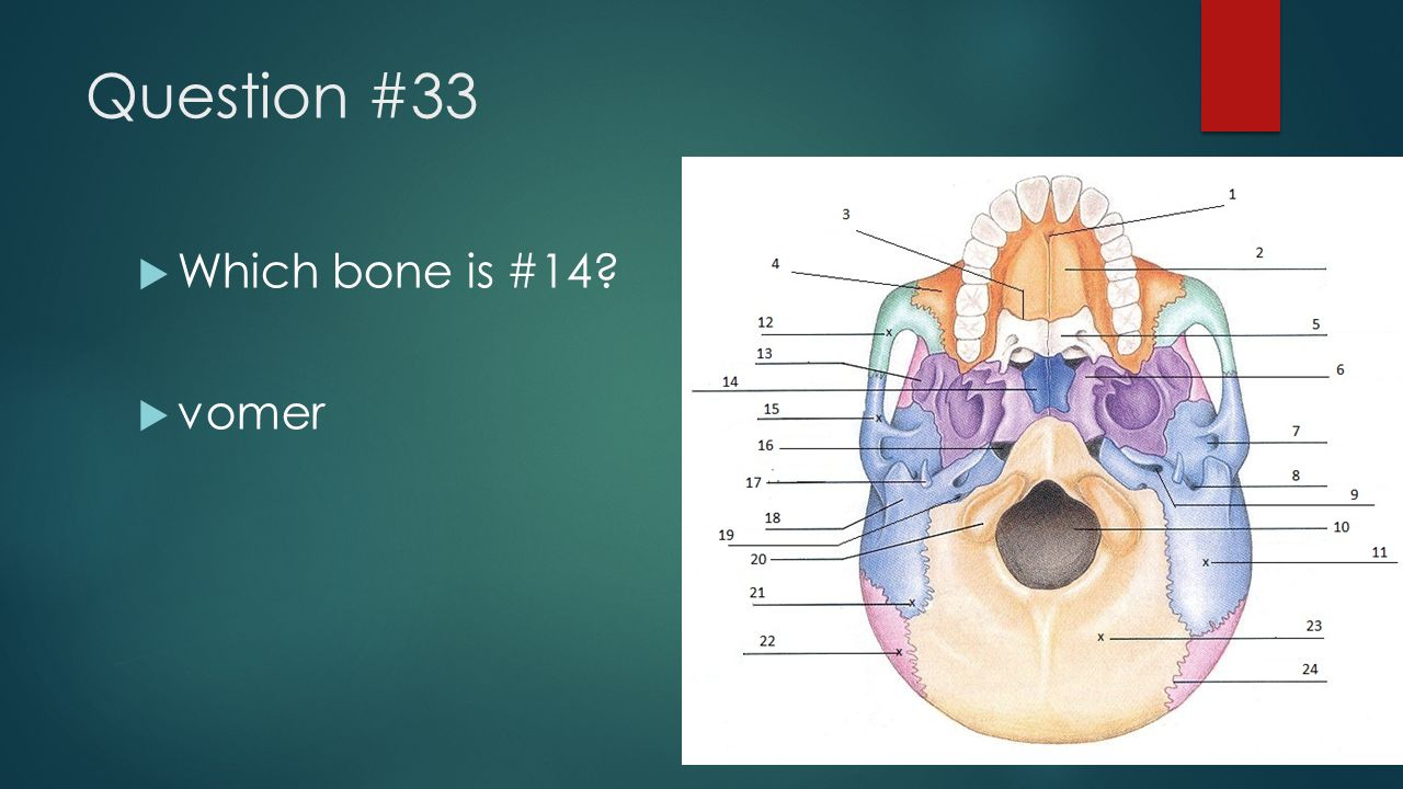 Question #33 Which bone is #14 vomer