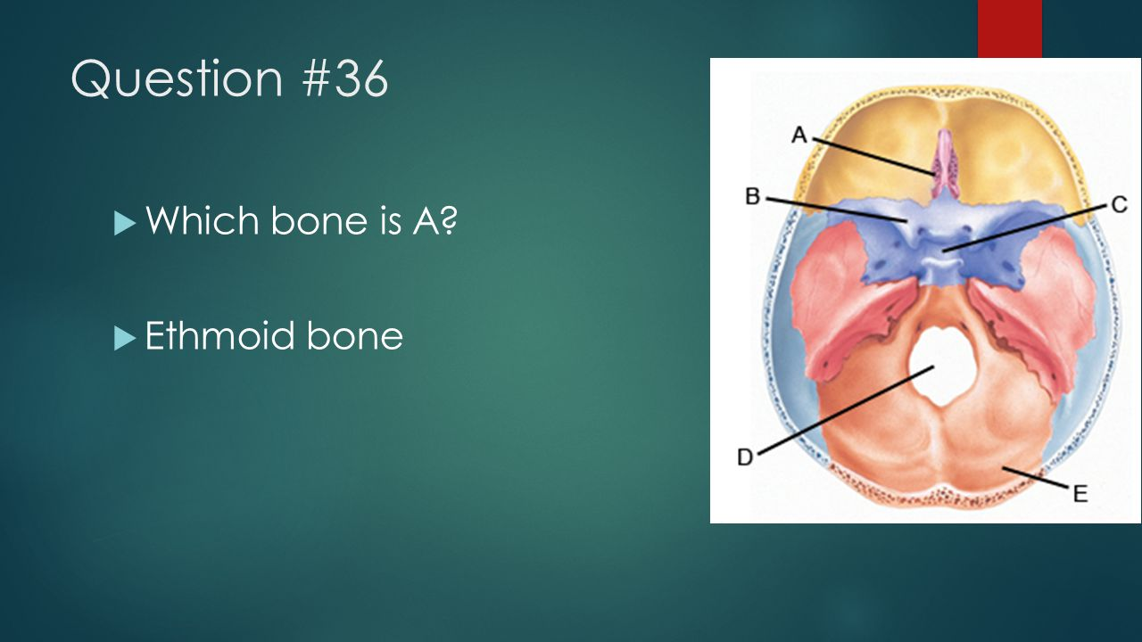 Question #36 Which bone is A Ethmoid bone