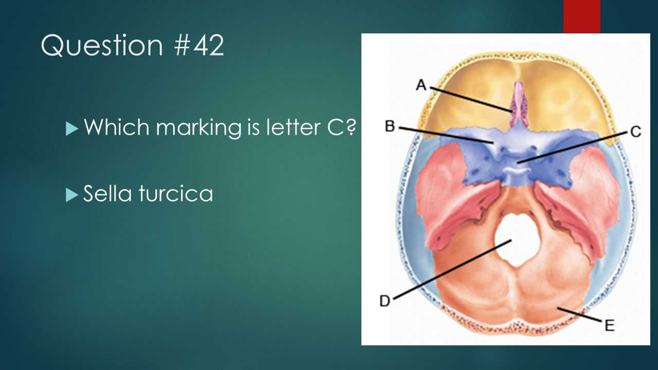 Question #42 Which marking is letter C Sella turcica