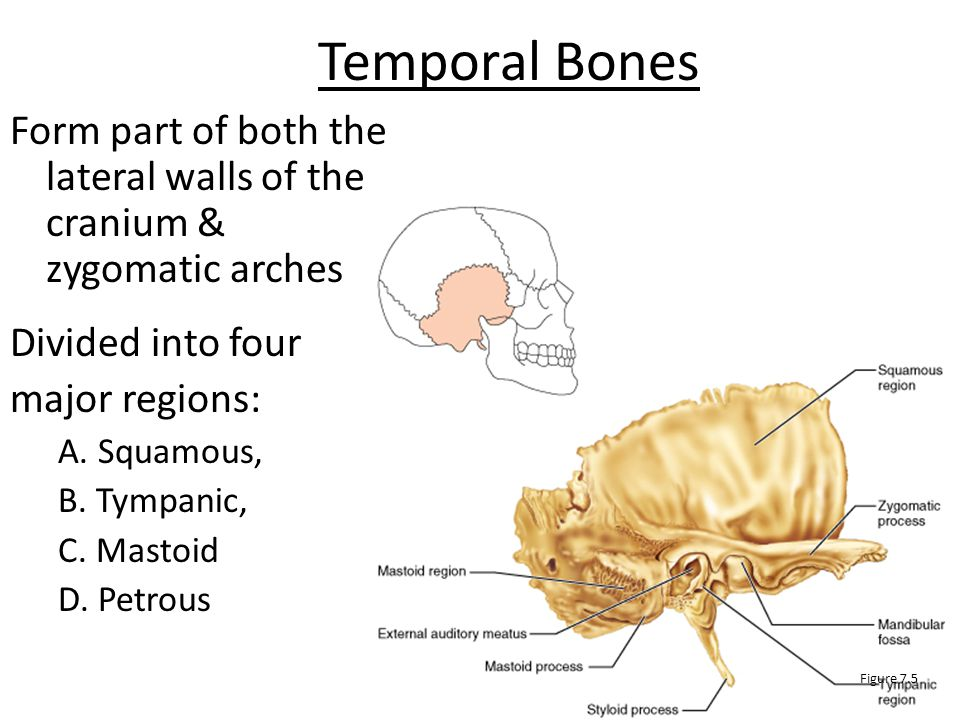 Temporal Bones Form part of both the lateral walls of the cranium & zygomatic arches. Divided into four.