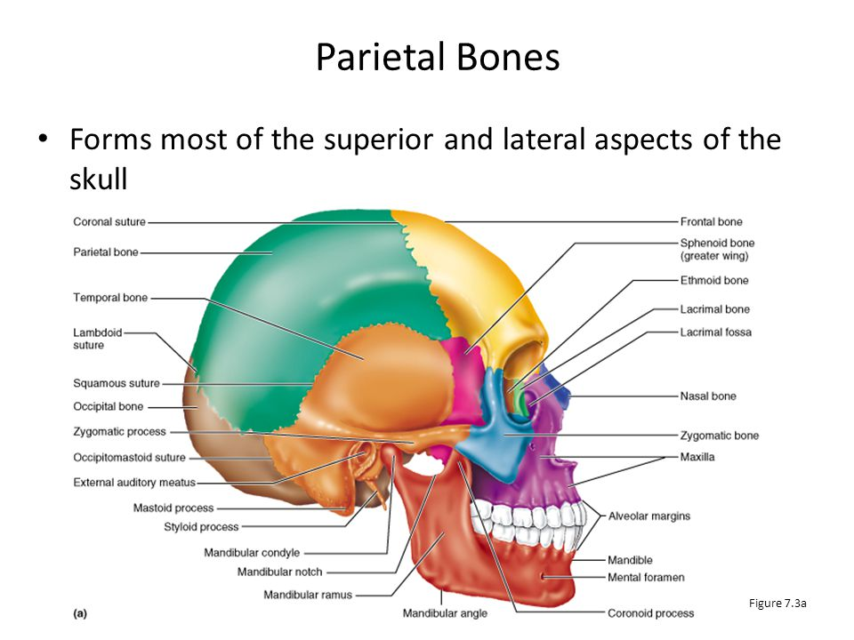 Parietal Bones Forms most of the superior and lateral aspects of the skull Figure 7.3a