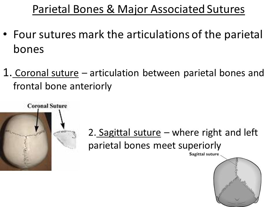 Parietal Bones & Major Associated Sutures