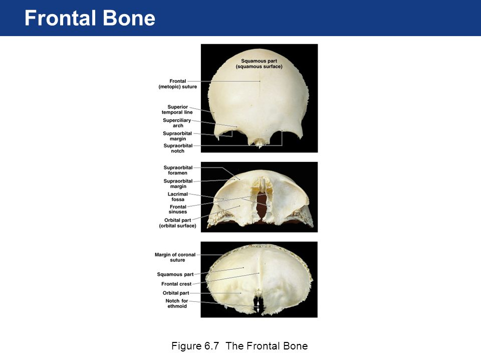 Frontal Bone Figure 6.7 The Frontal Bone