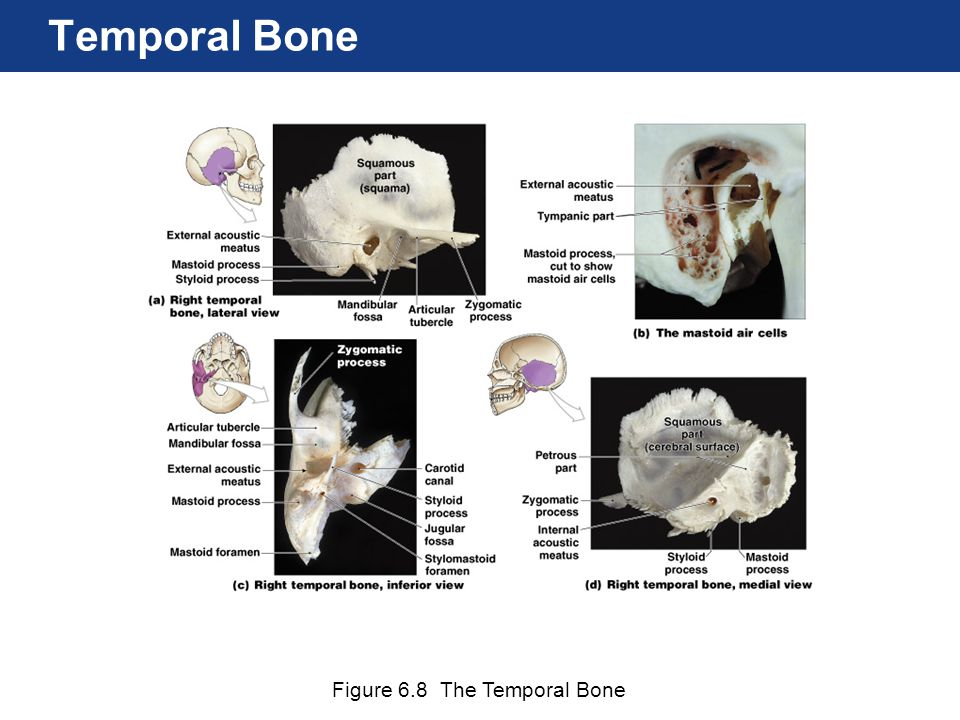Temporal Bone Figure 6.8 The Temporal Bone