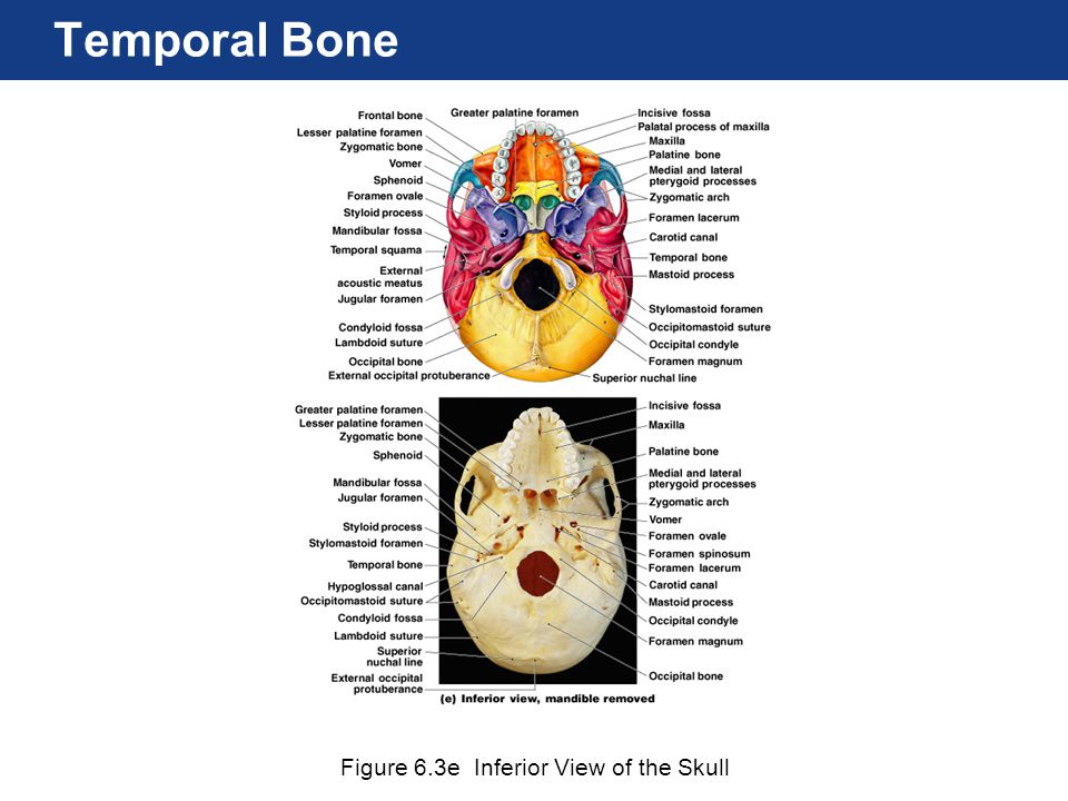 Temporal Bone Figure 6.3e Inferior View of the Skull