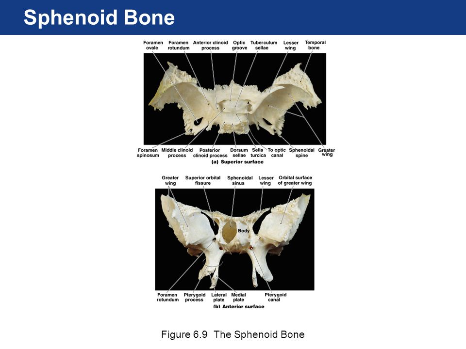 Sphenoid Bone Figure 6.9 The Sphenoid Bone