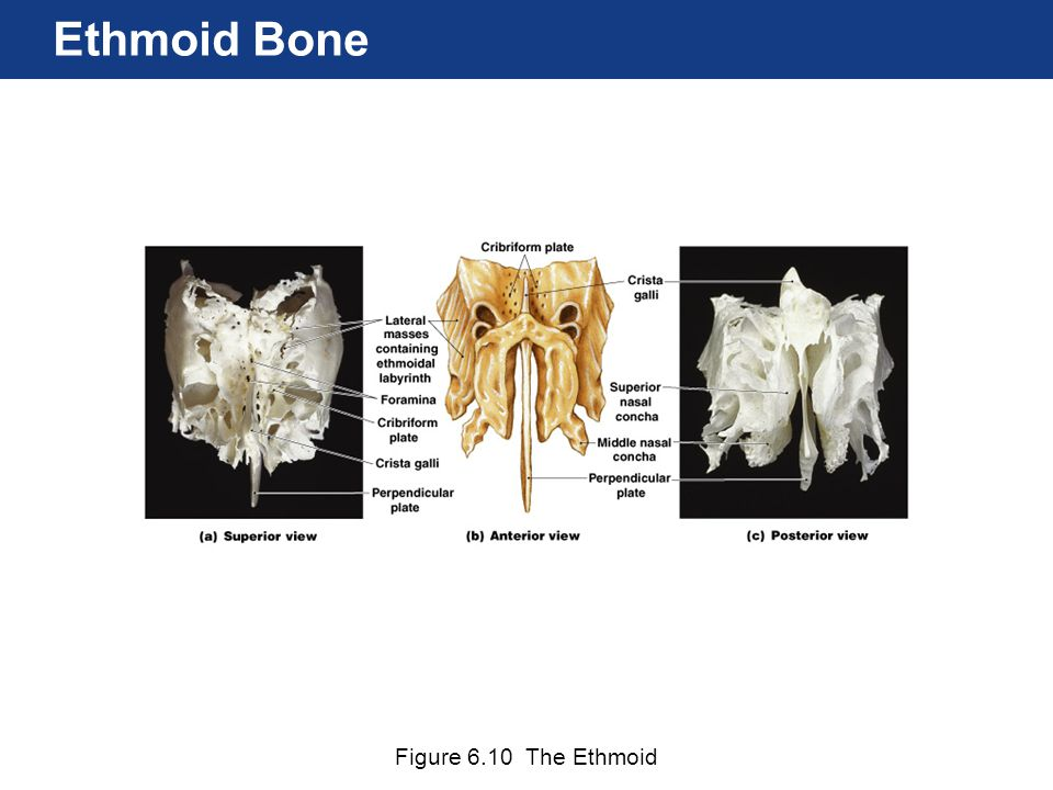 Ethmoid Bone Figure 6.10 The Ethmoid