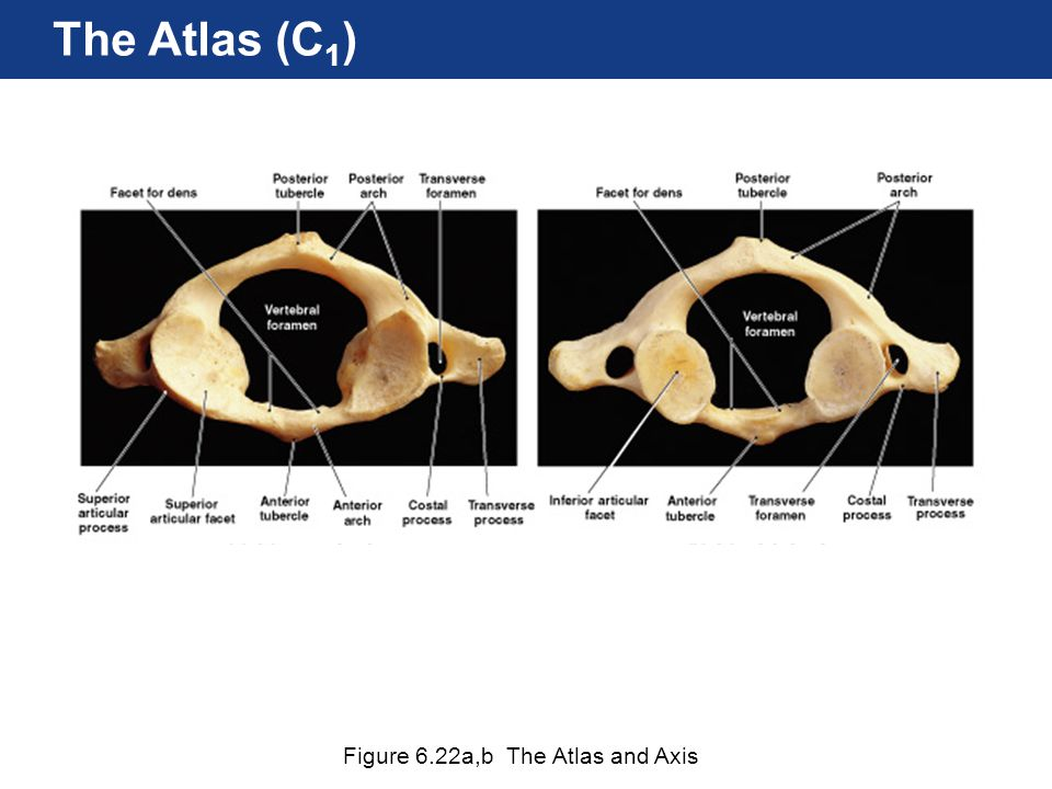 The Atlas (C1) Figure 6.22a,b The Atlas and Axis