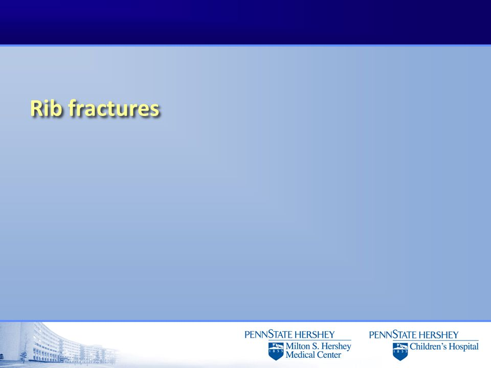 Rib fractures