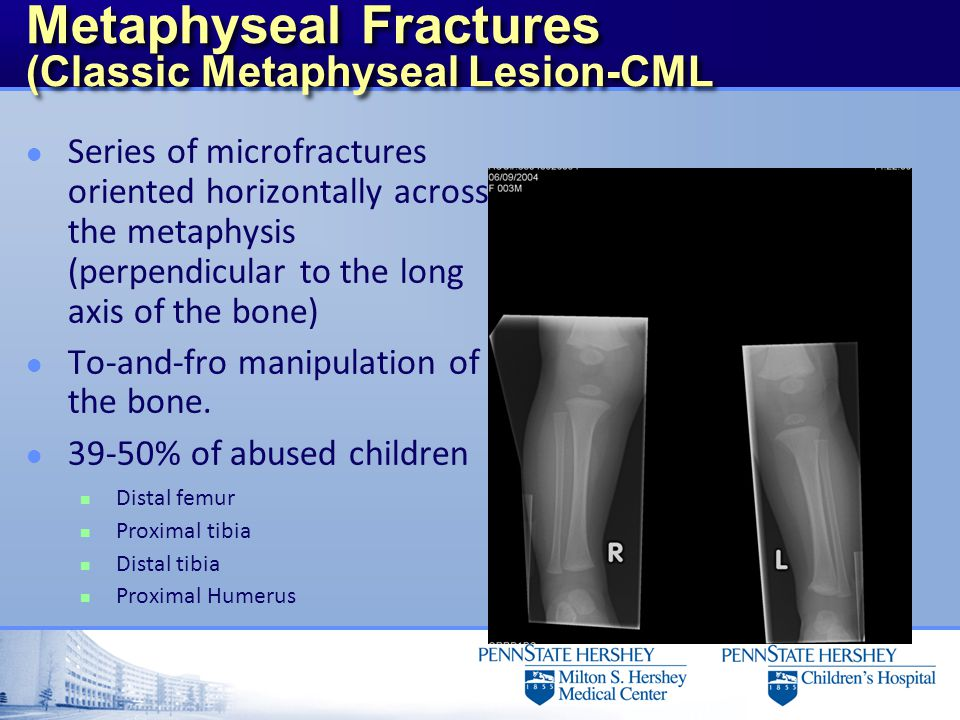 Metaphyseal Fractures (Classic Metaphyseal Lesion-CML