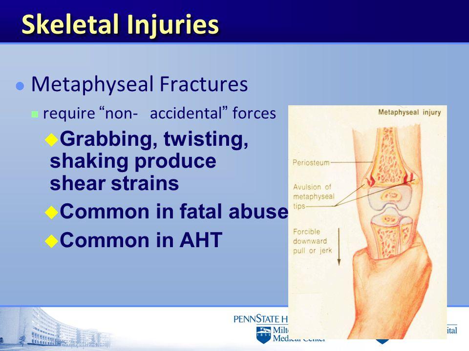 Skeletal Injuries Metaphyseal Fractures