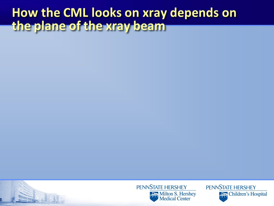 How the CML looks on xray depends on the plane of the xray beam