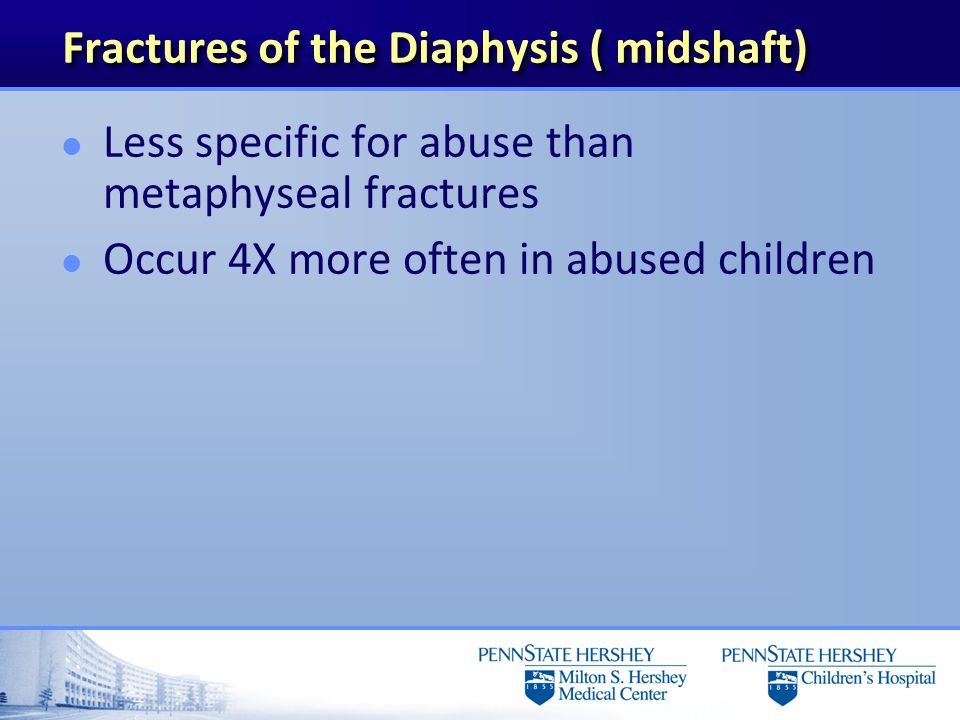 Fractures of the Diaphysis ( midshaft)