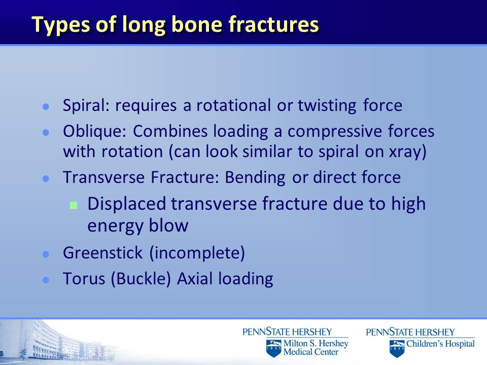 Types of long bone fractures