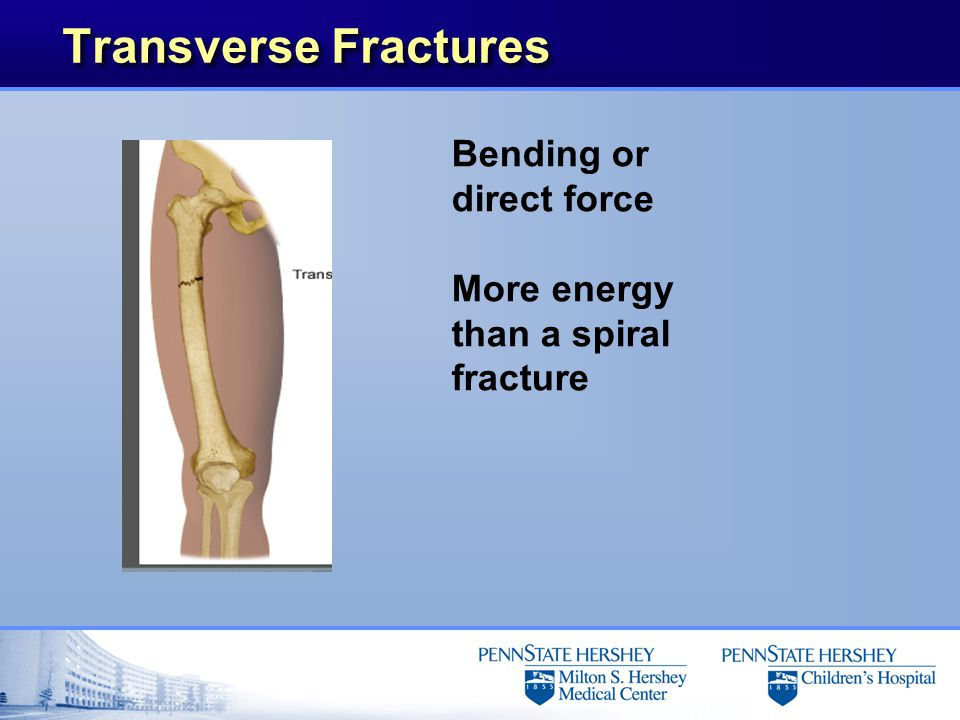 Transverse Fractures Bending or direct force