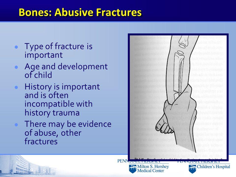 Bones: Abusive Fractures
