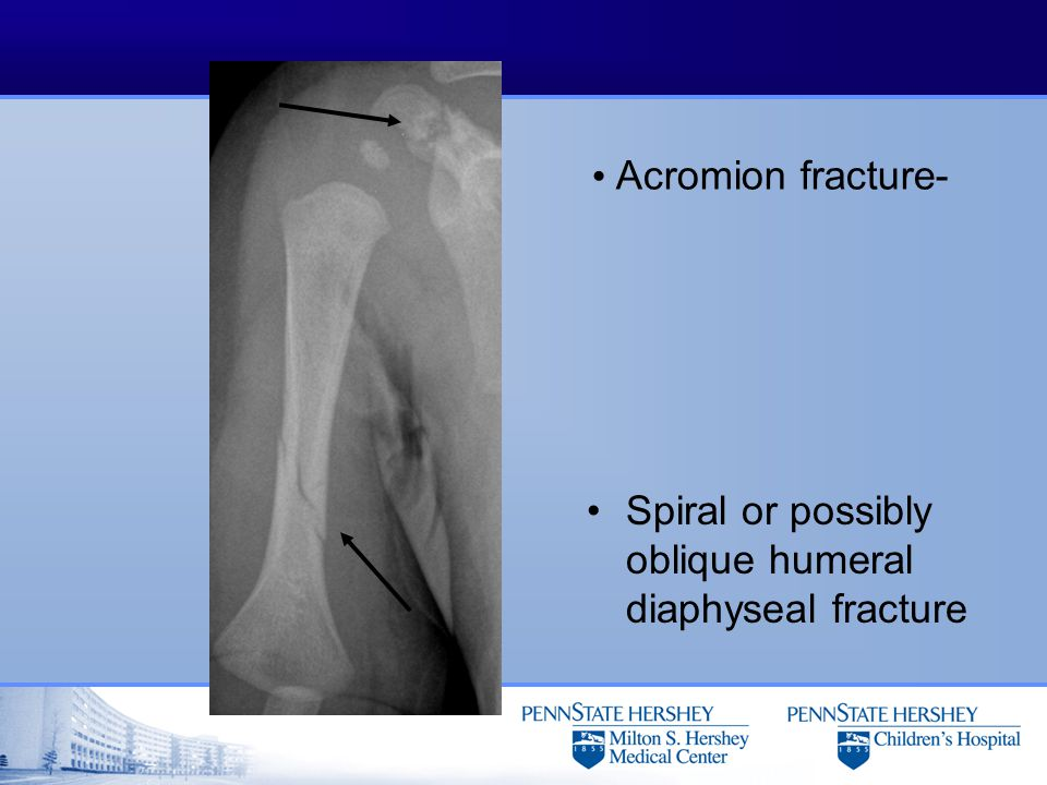 Acromion fracture- Spiral or possibly oblique humeral diaphyseal fracture
