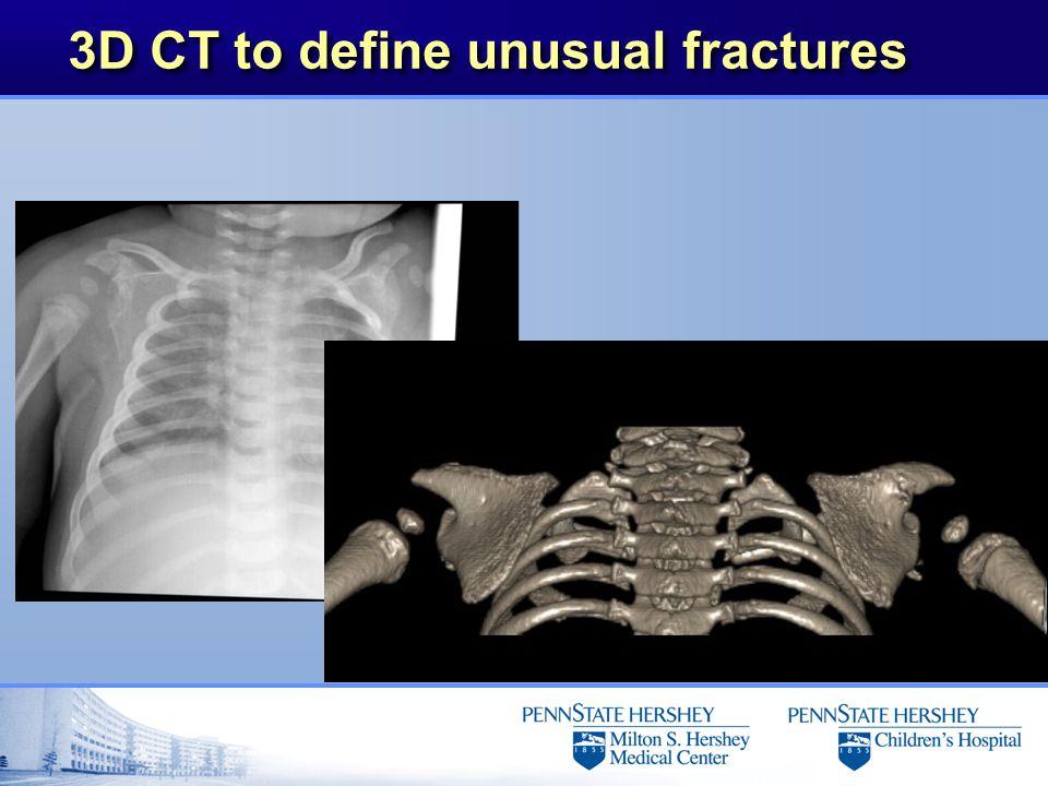 3D CT to define unusual fractures