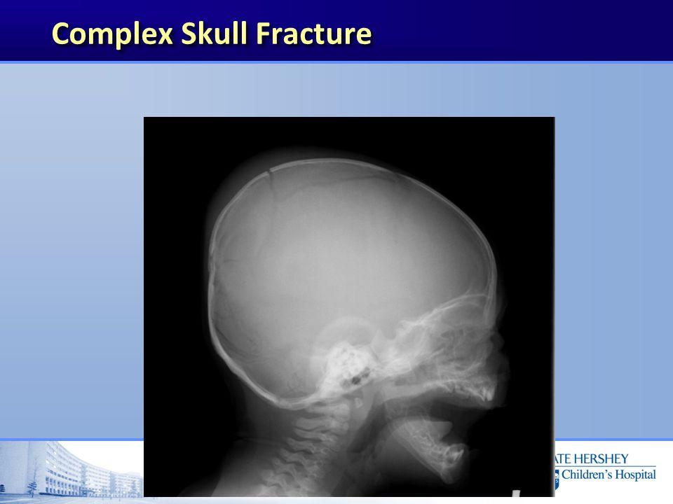 Complex Skull Fracture