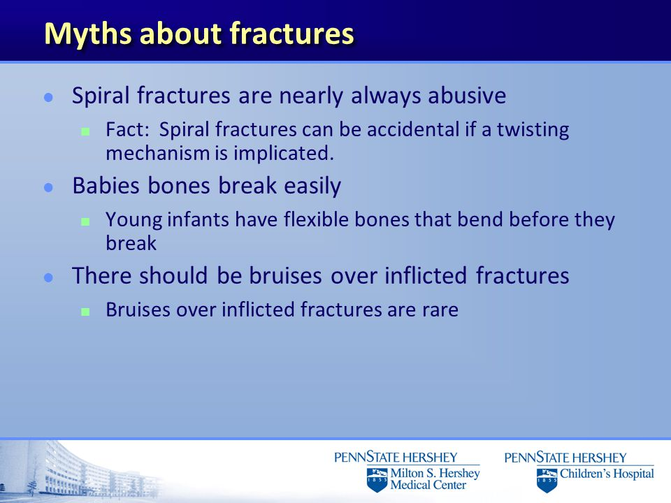 Myths about fractures Spiral fractures are nearly always abusive