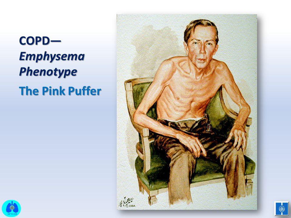 COPD—Emphysema Phenotype