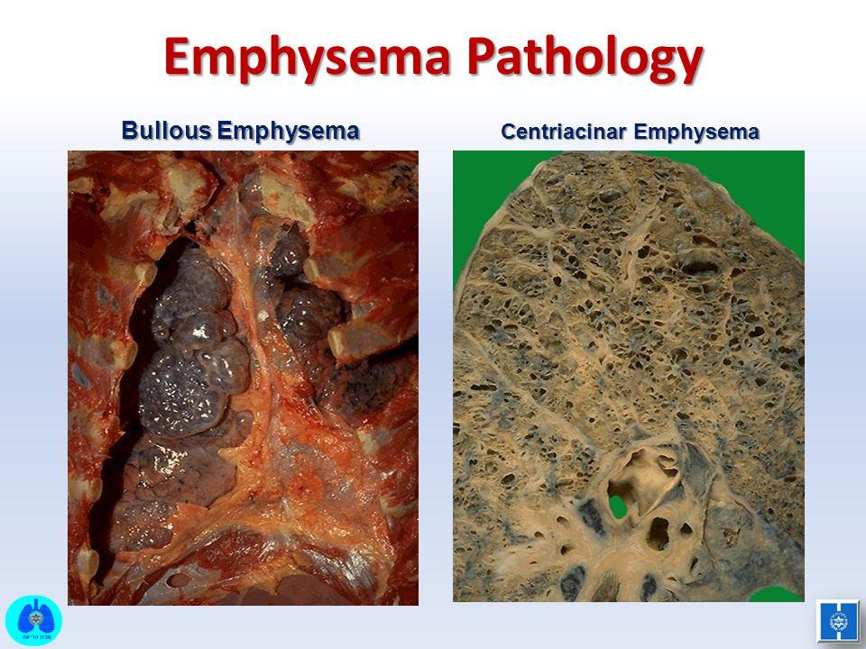 Centriacinar Emphysema