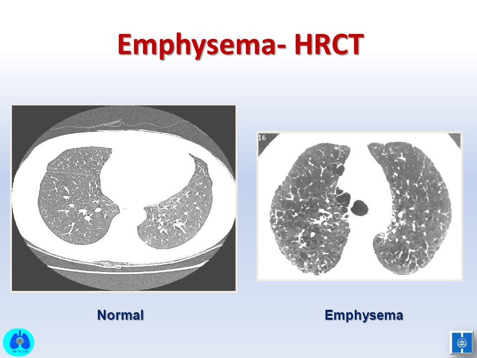 Emphysema- HRCT Normal Emphysema