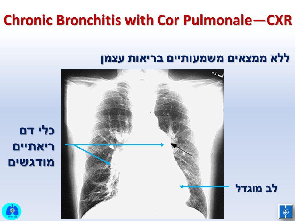 Chronic Bronchitis with Cor Pulmonale—CXR