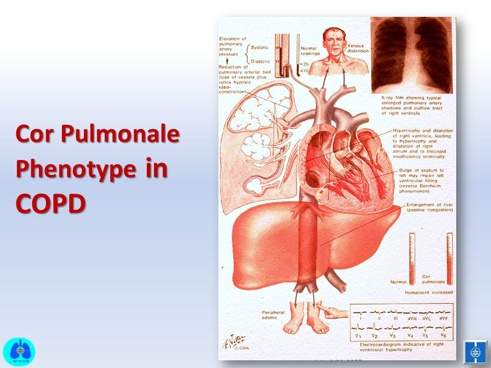 Cor Pulmonale Phenotype in COPD