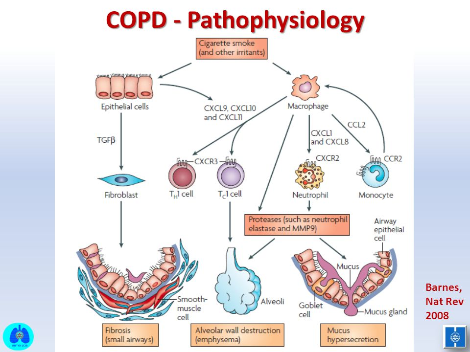 pathophysiology paper copd