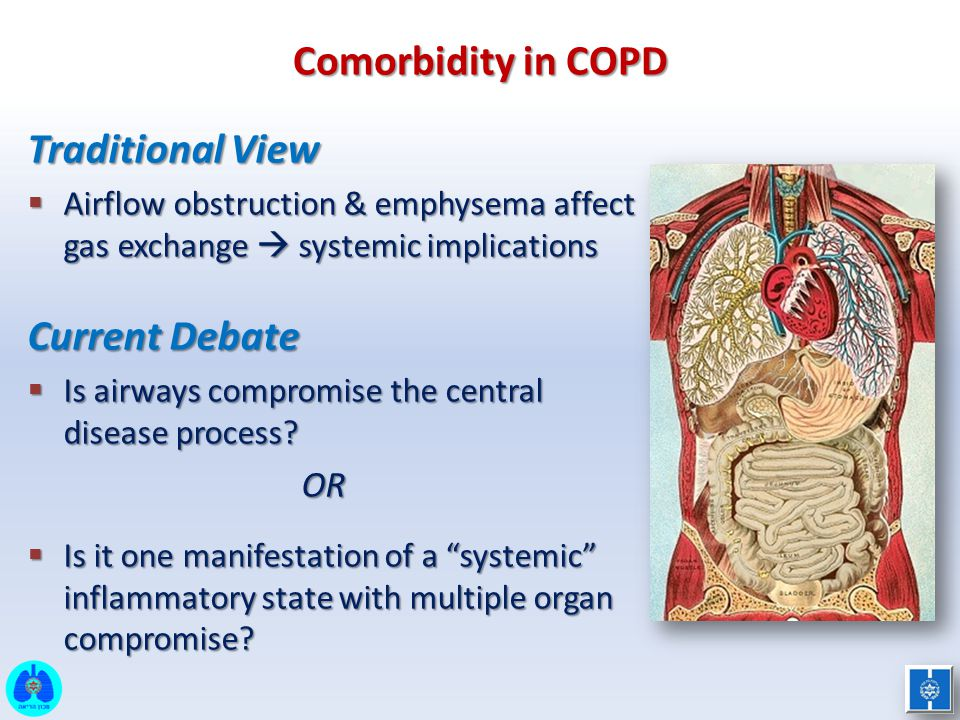 Comorbidity in COPD Traditional View Current Debate