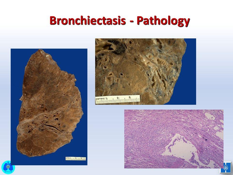 Bronchiectasis - Pathology