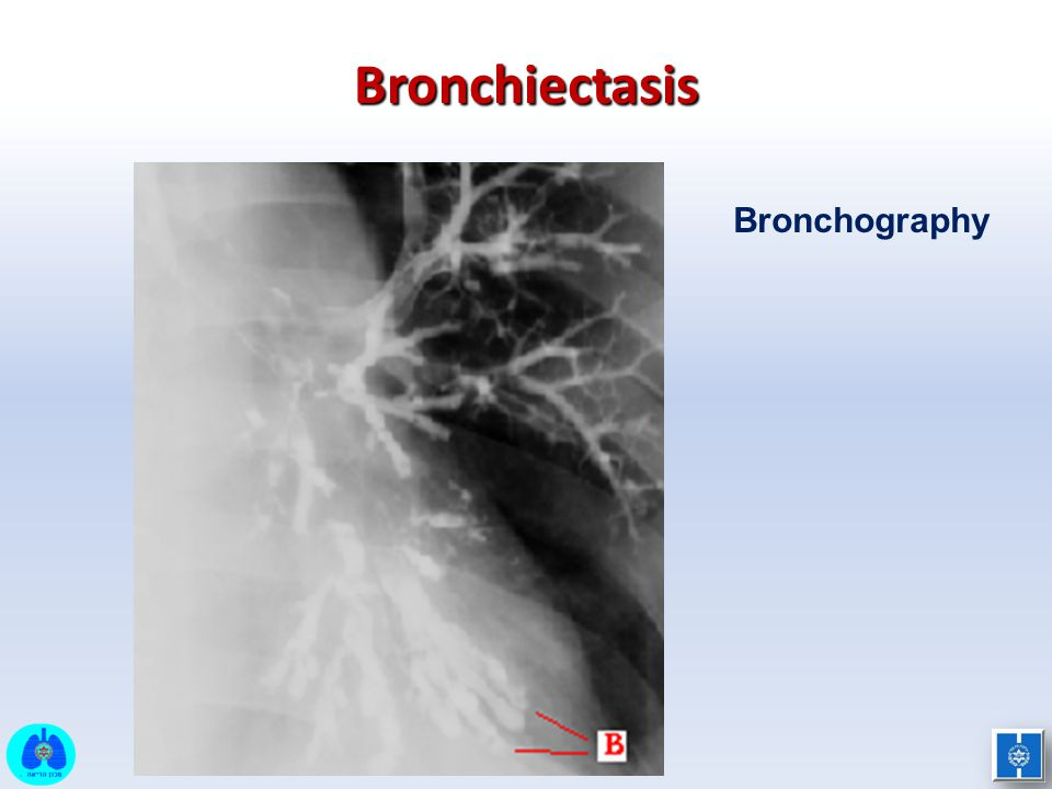 Bronchiectasis Bronchography