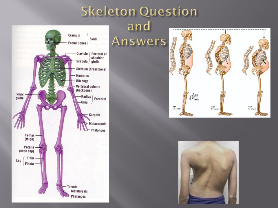 Skeleton Question and Answers