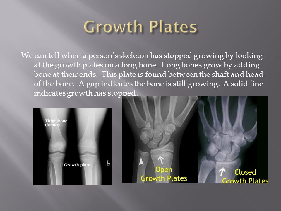 Growth Plates