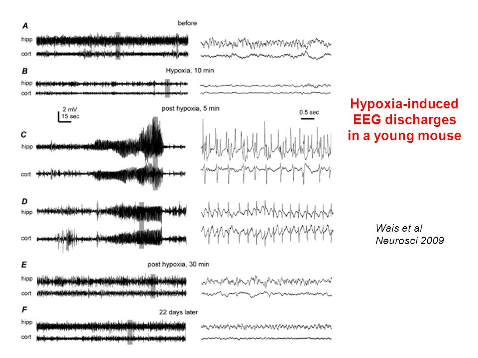Hypoxia-induced EEG discharges in a young mouse