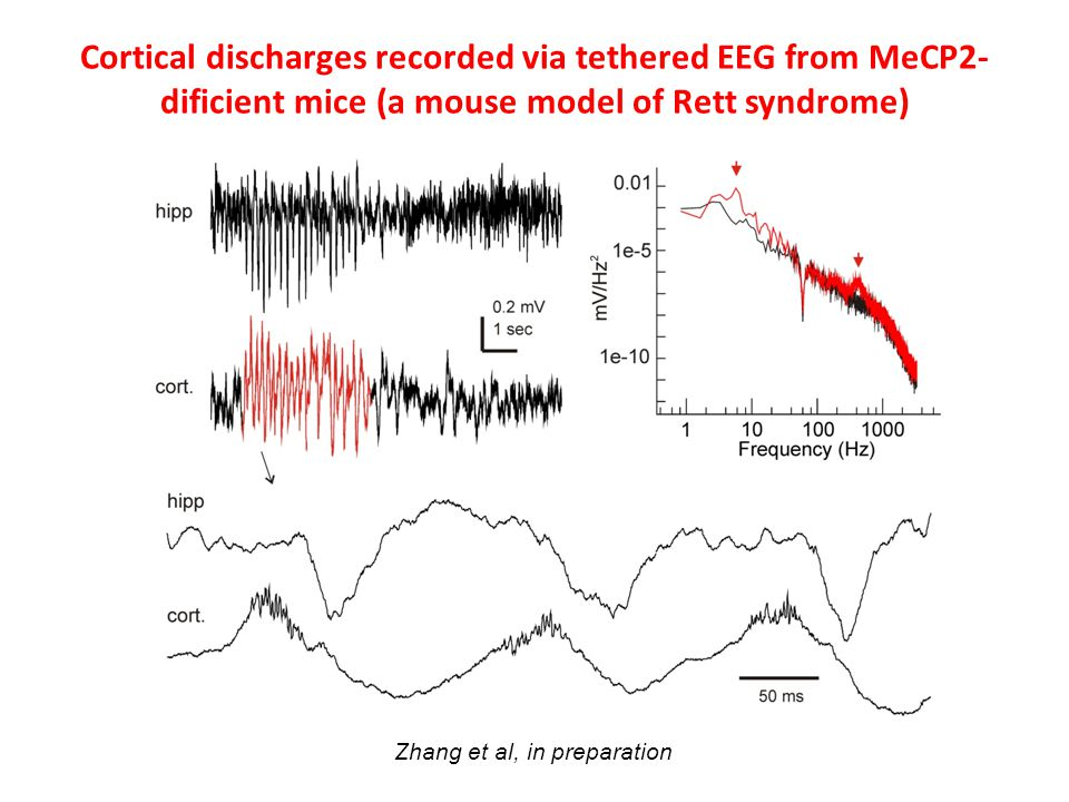 Cortical discharges recorded via tethered EEG from MeCP2-dificient mice (a mouse model of Rett syndrome)