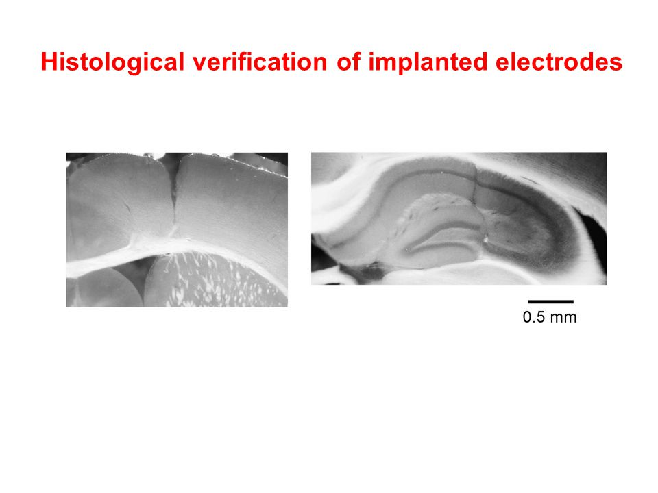 Histological verification of implanted electrodes