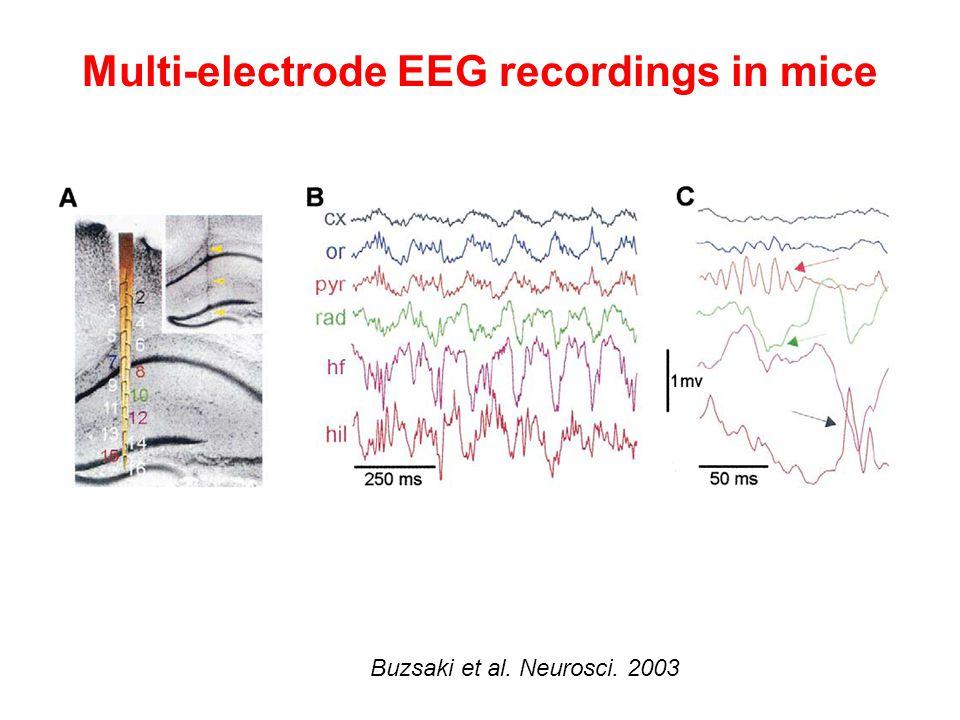 Multi-electrode EEG recordings in mice