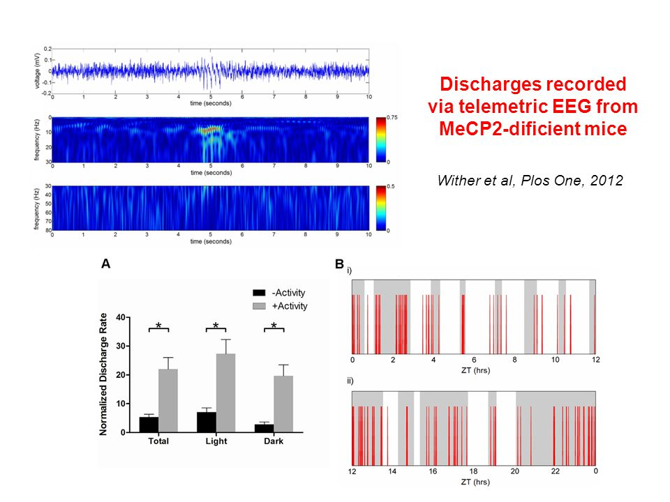 Discharges recorded via telemetric EEG from MeCP2-dificient mice