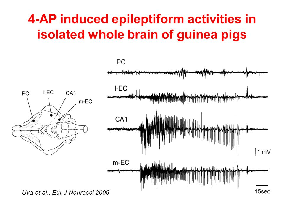 4-AP induced epileptiform activities in isolated whole brain of guinea pigs