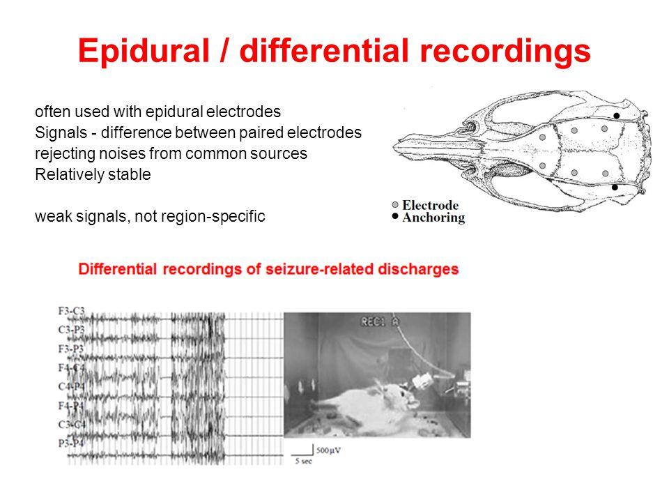 Epidural / differential recordings